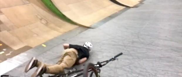 MATTY BROKE HIS LEG!
