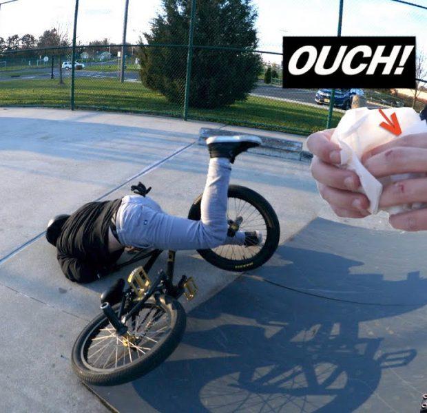 Bad Day For Vinny At The Skatepark!